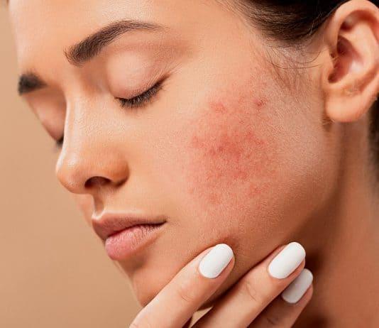 да изчистим лицето от акне